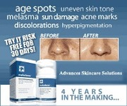 Diminish Dark Spots and Skin Discolorations In 2 Weeks!